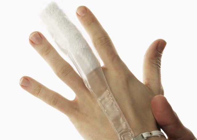 突き指で腫れてしまったときにその場でできる応急処置