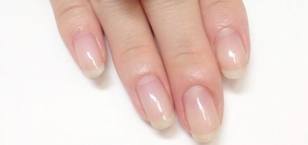 爪の病気の改善には根気が必要!悪化させない7つの予防策